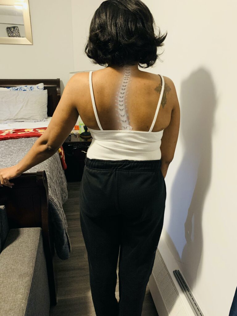 The effects of scoliosis